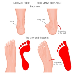 best shoes for pronating feet